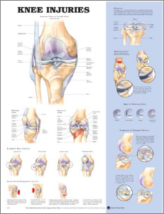 Anatomical Poster of Knee Injuries