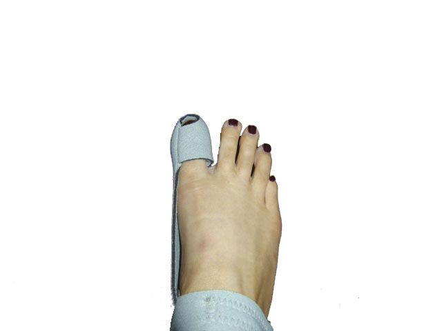 hallux valgus definition