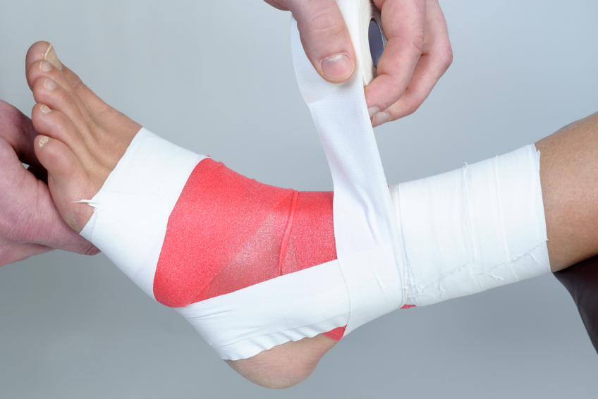 ankle taping more effective than bracing Prophylactic bracing versus taping for the prevention of ankle sprains in high school athletes: a prospective, randomized trial more effective than taping.